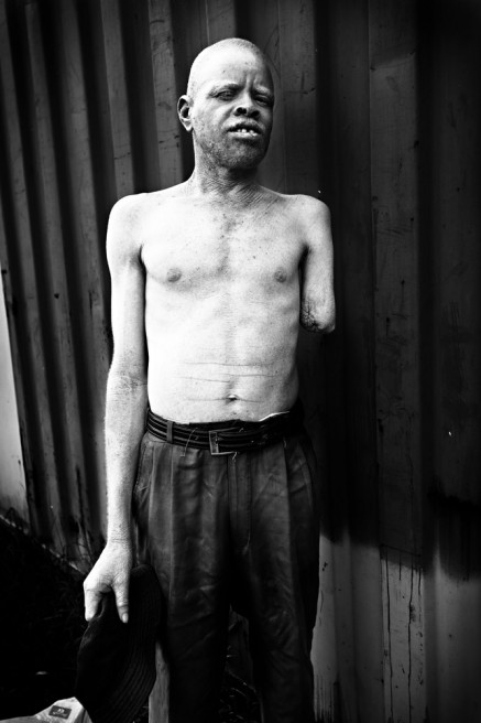 Art and Documentary Photography - Loading FVO-Albino-Killing-Tanzania-4.jpg