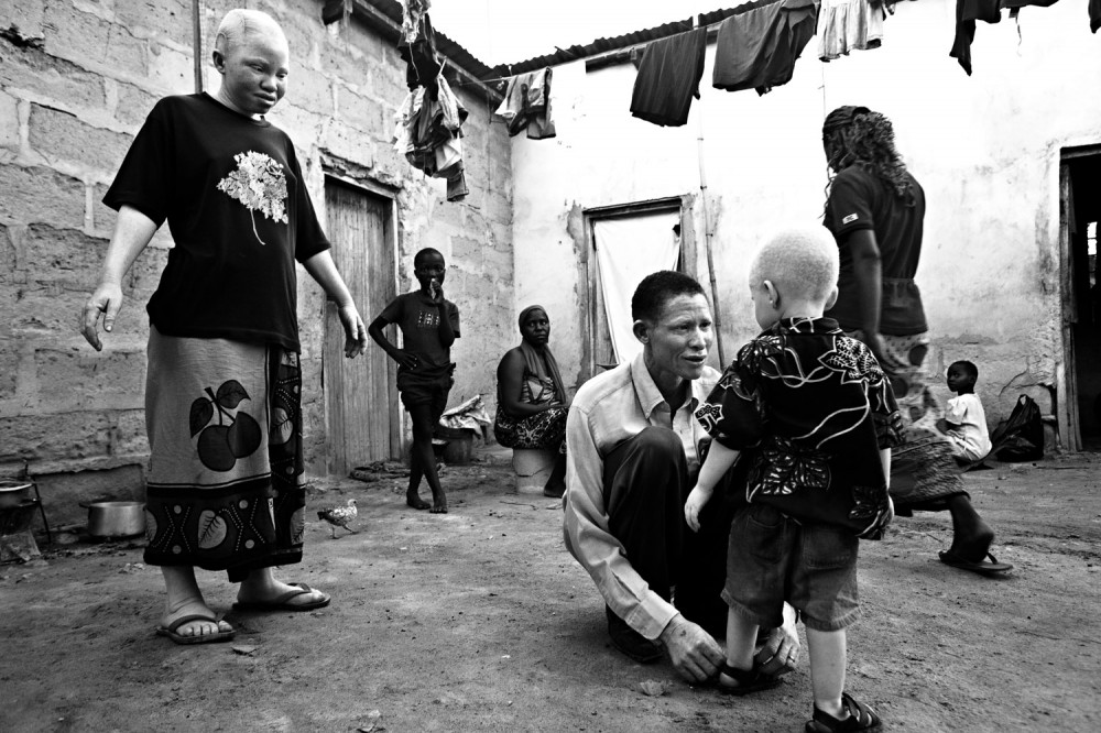 Art and Documentary Photography - Loading FVO-Albino-Killing-Tanzania-18.jpg