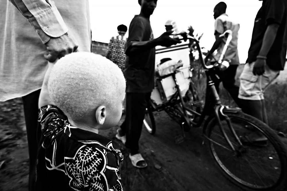 Art and Documentary Photography - Loading FVO-Albino-Killing-Tanzania-28.jpg
